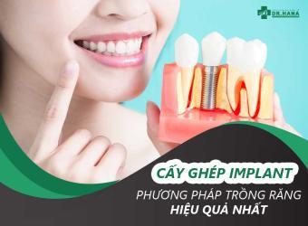 Cấy ghép Implant