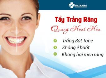 Tẩy trắng răng Quang Hoạt Hóa