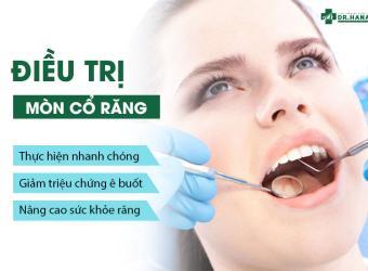 Điều trị mòn cổ răng